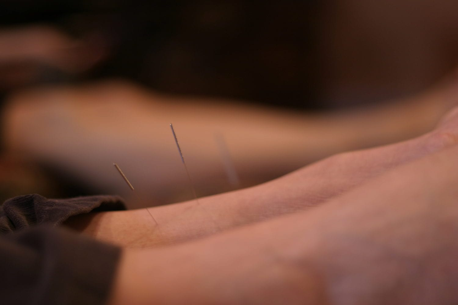 Why do you use needles to stimulate acupuncture points acucare stimulate acupuncture points solutioingenieria Image collections